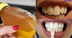 There exist a lot of expensive tooth whitener, but not all of them working fine. Apple cider vinegar is an amazing natural product which can be used for numerous things, and it's also a great teeth whitener. Made from fermented apples, it is rich in pectins, healthy enzymes and essential minerals. It can remove stains, …