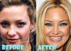 kate hudson rhinoplasty