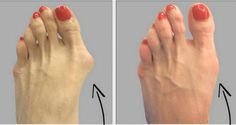 Bunions are salt deposits, but angina, influenza, gout, bad metabolism, rheumatic infections, poor diet and long wearing uncomfortable shoes also contribute to their formation. More. Worth a try.