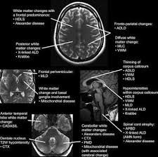 CT Temporal bone anatomy | CT Scan Tips & Protocols | radiology ...