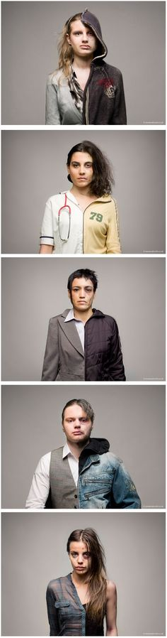 Roman Sakovich, jeune photographe de 26 ans nous propose cette série intitulée Portraits Before and After Drug Abuse.