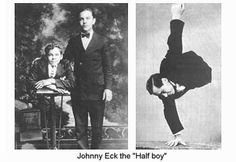 Johnny Eck, the Half Boy