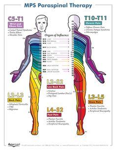 Dermatome Poster - Small