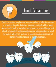 Affordable tooth extraction procedures from Thomas Dental Care in Davis, CA. Dental extractions including wisdom teeth, severe decay or infection, and to create room Dental Extraction, Tooth Extraction Aftercare, Tooth Extraction Healing, Teeth Health, Oral Health, Dental Health, Dental Care, Dental Group, Health Care