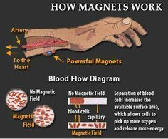 Magnet Bracelets And How They Work Medical Facts Acupuncture Acupressure Health Remes