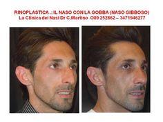 RINOPLASTICA NAPOLI IL NASO CON LA GOBBA DR. C. MARTINO ROMA / SALERNO