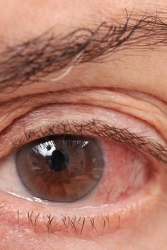 324 Best Dry Eye Treatments images in 2019 | Dry eye treatment, Eyes