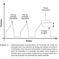Paciente Grave: Mecânica ventilatória: guia rápido