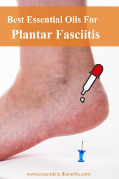 Want to know what plantar fasciitis is and what causes it? FInd out the best treatment methods incuding essential oils and essential oil blends to treat it. Essential Oils For Pain, Essential Oil Uses, Doterra Essential Oils, Young Living Essential Oils, Healing Oils, Aromatherapy Oils, Remedies For Plantar Fasciitis, Healing Plantar Fasciitis, Plantar Fasciitis Shoes