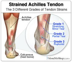 Ankle Sprain vs Strain - What Is The Difference? A sprain is a stretch and/or tear of a ligament. A strain is an injury of a muscle and/or tendon. Learn effective treatments for both by continuing to read. Achilles Tendonitis Exercises, Achilles Tendonitis Treatment, Achilles Stretches, Exercise Physiology, Anatomy And Physiology, Ankle Anatomy, Foot Anatomy, Achilles Pain, Massage