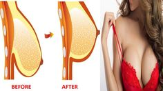 392d0d7308f1e Firming Sagging Breast In Just 1 Week