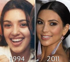Kim_Kardashian eye lift before and after - Plastic Surgery Kardashians Before And After, Kim Kardashian Before, Kardashian Jenner, Kardashian Memes, Kris Jenner, Kylie Jenner Plastic Surgery, Plastic Surgery Pictures, Celebs Without Makeup, Celebrity Plastic Surgery