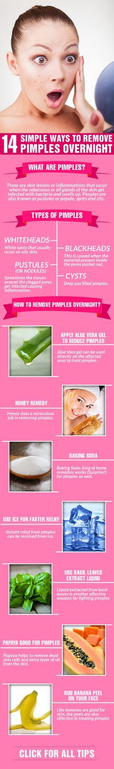 14 Simple Ways To Remove #Pimples Overnight #beautytips