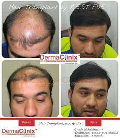 Best Hair Loss Treatment in South Delhi at Dermaclinix. The services we provide are FUE hair transplant and Body hair transplant.