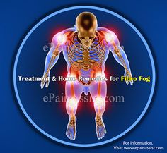 fibromyalgia is predominantly associated with severe pain and less