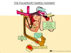 The Pulmonary Emboli Highway | Nursing Mnemonics and Tips