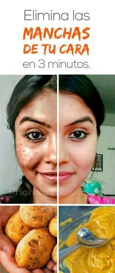 Acne – Skin Care Treatments, Tips & Advice Skin Tips, Skin Care Tips, Beauty Secrets, Beauty Hacks, Beauty Tips, Brown Spots On Skin, Tips Belleza, How To Apply Makeup, Facial Masks