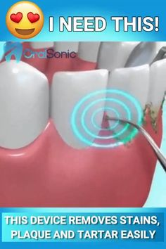 🦷 The OralSonic™ Teeth Cleaner makes it easy to get rid of tartar buildup, plaque and stains. Get whiter and healthier teeth from the comfort of your home. 😍 🦷 Easy Home Solution 🦷 Portable & Waterproof Gum Health, Teeth Health, Healthy Teeth, Oral Health, Cure For Constipation, Tartar Removal, Tooth Enamel, Stained Teeth, White Smile