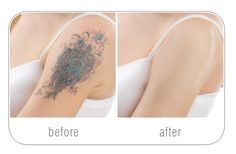 Skin Color Tattoo To Cover ScarTattoo Themes Idea Skin Color Tattoos, Tattoo Skin, Tattoo Themes, Tattoo Ideas, Tattoos To Cover Scars, Corrective Makeup, Skin Brightening, Acne Scars, Beautiful Tattoos