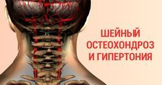 Few people believe in the fact that the cervical neck – Healthy Recipes Healthy Habits, Healthy Tips, Herbal Remedies, Natural Remedies, Banana Face Mask, Back Pain Remedies, Fitness Studio, Health And Beauty, Herbalism