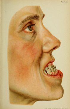Forms of prognathism: in a 50 year old- superior maxilla normal, but lower jaw protrudes to such an extent that its teeth, when the mouth is closed, lie in front of the upper jaw. Prognathism is als known as Habsburg jaw, because near the end of their reign, each successive generation of the House of Habsburg had increasingly severe jaw protrusion going along with other genetic disorders.