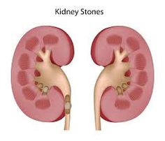 8 best kidney stones images on pinterest natural home remedies