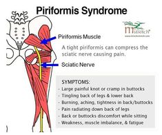 Learn the Symptoms of Piriformis Syndrome. Get relief with focused stretching - the Piri-Stretcher®… Sciatic Pain, Sciatic Nerve, Nerve Pain, Psoas Release, Sciatica Exercises, Hip Flexor Exercises, Psoas Muscle, Muscle Anatomy, Hip Pain