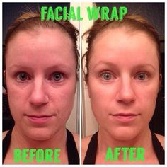 Check out these facial results!!!