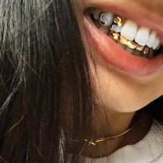 Dentaltown - Does your dental office provide Next Level Extreme Makeover Cosmetic Dentistry Services? Girls With Grills, Gold Slugs, Diamond Grillz, Grills Teeth, Tooth Gem, Gold Teeth, Skateboard Girl, Jewelry Stores, Jewelry Ads