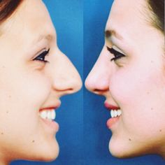 A new way to look at an amazing transformation! We love the way her new nose com. Bulbous Nose, Rhinoplasty Before And After, Perfect Nose, Face Profile, Amazing Transformations, Return To Work, Belleza Natural, Tobias, No Way