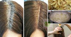 Premature grey hair is very common these days. Its understandable with age but grey hair at a young age is something . Read moreTreat Premature Grey Hair With Potato Peels Home Remedy Covering Gray Hair, Blood Pressure Remedies, Moisturizing Shampoo, Hair Starting, Peeling Potatoes, Healthy Exercise, Pregnancy Health, Facon, Grow Hair