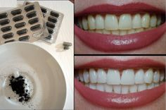 use charcoal to whiten your teeth! Leave for three min Beauty Secrets, Diy Beauty, Beauty Hacks, Cosmetic Treatments, Diy Spa, Slow Food, Natural Herbs, Natural Cosmetics, Body Care