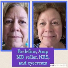 Redefine Regimen, Rodan And Fields Redefine, Amp Md Roller, Cosmetics Ingredients, Look Younger, Your Skin, How To Become, Facial, Skin Care