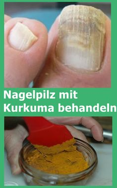 Nagelpilz mit Kurkuma behandeln Treat nail fungus with turmeric Skin Care Regimen, Skin Care Tips, Good Skin Tips, Nail Fungus, Healthy Beauty, Health Diet, Fungi, Turmeric, Tips