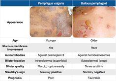 Pemphigus vulgaris vs. Bullous pemphigoid