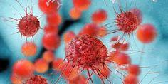 Es ist ein Schock, zu erfahren, dass ein Krebstumor bereits gestreut hat. Jetzt haben Forscher entdeckt, wie man die Ausbreitung eventuell verhindern kann.