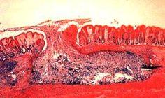 Entamoeba histolytica flask shaped ulcer