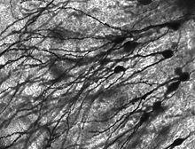 purkinje cell | Micrografía de neuronas del giro dentado de un paciente con epilepsia ...