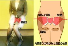 大転子が出ているのひとの声 大転子引っ込める方法、大転子矯正、ストレッチ方法、大転子痛みの原因となおす方法につ…