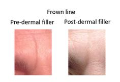 Anti-wrinkle injection and dermal fillers for a deep frown line