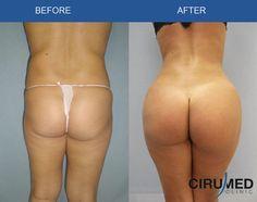 Brazilian Butt Lift surgery - Liposuction + fat transfer into buttocks.