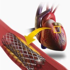 Coronary Stents Market - Global Industry Analysis, Size, Share, Growth, Trends and Forecast 2012-2018