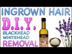 Get Rid of Ingrown Hair, Whiteheads & Blackheads on Legs and Body FAST {DIY} Get Celebrity like Skin - YouTube