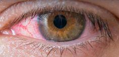 #orbispanama Panama: 'Pink eye' cases near 75000 this year - Outbreak News Today #KEVELAIRAMERICA