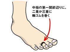 「足裏のアーチを取り戻す簡単な方法があります。それは、足の指に輪ゴムを巻くこと。中指の第一関節辺りに、二重か三重に輪ゴムを巻きます。これによって脳が中指を意識し、内側と外側のアーチを認識しやすくなるのです」 ゴムを巻くのは中指の存在を知覚するためなので、跡がつかない程度のゆるさで巻けばOK。 「両足とも巻き終わったら、立って歩いてみてください。普段よりもしっかりと地面に足裏がついてバランスが取りやすくなり、脚全体を前に出しやすいはずです。このワークを定期的に続けると、足底筋のバランスが整いやすくなり、O脚やX脚、外反母趾、内反小趾の改善につながります」 藤本さんによれば、輪ゴムワークは、重心をかけやすくなるので運動中に行うのもオススメだとか。 「ただし、一日中巻きっぱなしにせず、つけているときと外したときの差を感じたほうが、より体が正しい状態に戻ろうとするので、ゆがみの改善が早くなりますよ」 どこでも手に入る輪ゴムで、簡単にO脚やX脚の改善ができるなんて驚きですね。急な運動を行うのではなく、まずはゆっくり歩く時に取り入れることから始めてみましょう!