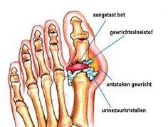 Jicht is een zeer pijnlijke vorm van artritis. Gelukkig zijn er natuurlijke middelen die helpen de symptomen te bestrijden, zoals ananas en kersen.