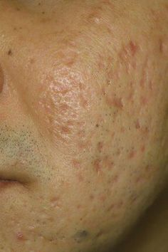 Acne Scar Remedies - Get Rid Of Acne Scars Naturally