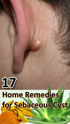 17 Home Remedies For a Sebaceous Cyst