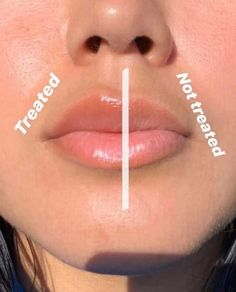 Natural Lip Plumper, Natural Lips, Lip Plumping Balm, Lip Balm, Contouring Lip Gloss, Lip Fillers, Healthy Skin Care, Younger Looking Skin, Anti Aging Skin Care
