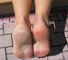 Effective Home Remedy for Sore, Cracked and Stinky Feet Mix c Listerine (any kind), c vinegar and c of warm water. Soak feet for 10 minutes and when you take them out the dead skin will practically wipe off. Homemade Beauty, Diy Beauty, Beauty Hacks, Fashion Beauty, Belleza Diy, Tips Belleza, Health And Beauty Tips, Health Tips, Home Remedies